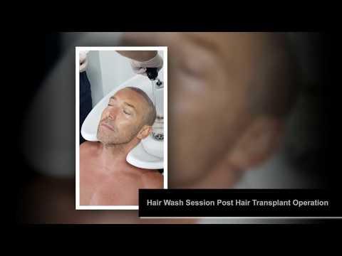 Hair Wash Session Post Hair Transplant Operation