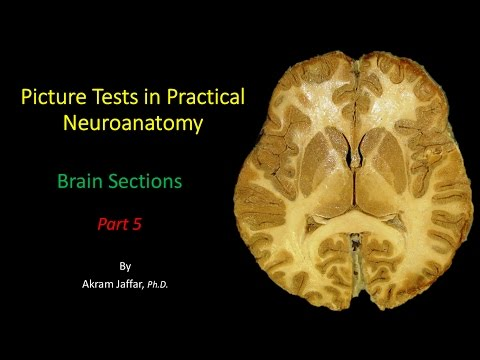 Picture Test in Neuroanatomy Brain Sections 5