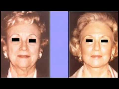 Le masque autour des yeux des aloès