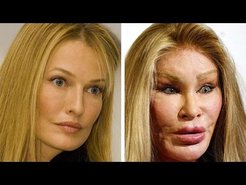 10 People Who Took Plastic Surgery Too Far