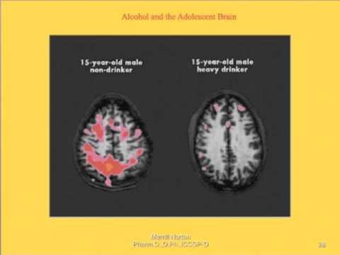 Smettere di bere per diventare più autosicuro