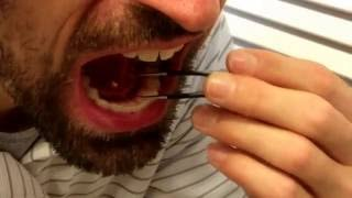 Removing my own salivary gland stone