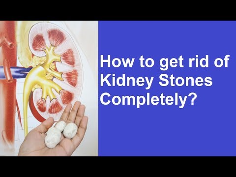 PCNL - Kidney Stone Removal through a Keyhole