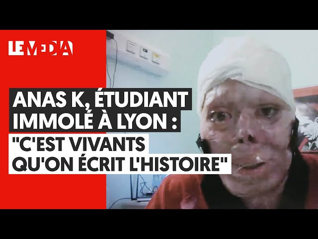 Video Pronunciation of lyoN in French