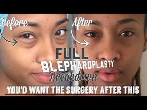 My Full Blepharoplasty Breakdown | Day By Day + FAQ + Results