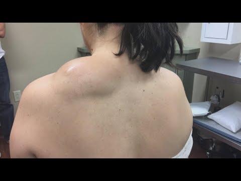Gyógyulás a csípőízület beültetése után
