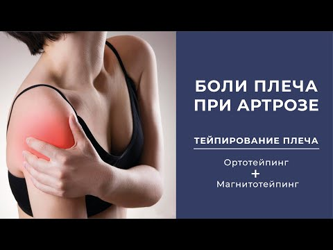 Боль в плече  Артроз плеча  Тейпирование плеча