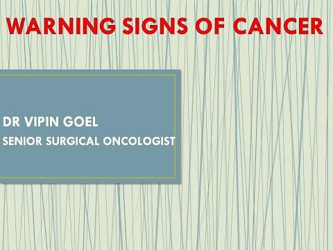 Symptomy ostrzegawcze raka i jak go wcześnie zdiagnozować - 7 objawów, które powinieneś znać