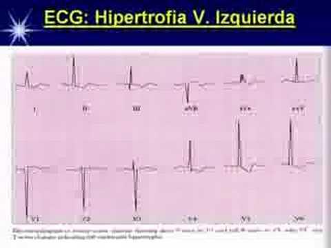 Medicamentos para la acción central hipertensión