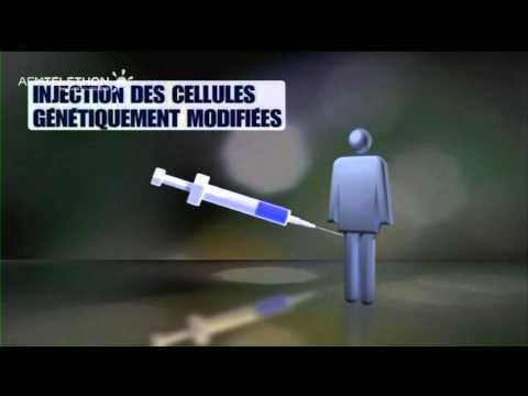 Les médicaments à la varice variqueuse