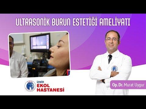 Ultrasonik Burun Estetiği Ameliyatı - Op. Dr. Murat Uygur - İzmir Ekol Hastanesi