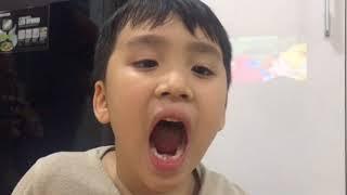 """""""Kép nhí"""" của Thu Trang đi nhổ răng"""