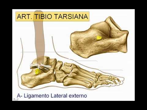 El tratamiento conservador de la osteoartritis de la articulación del tobillo