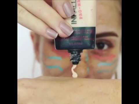 Пигментация кожи ребенка
