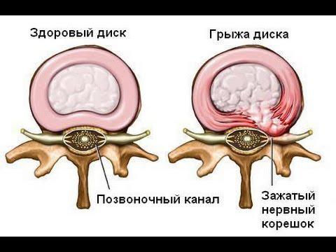 Hind vererõhu mõõtmise seade