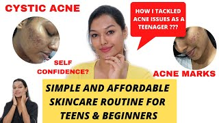 How to start Skincare Routine for Teenagers/Beginners|Simple Effective Steps | #SkinTalkWSarah EP 15