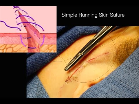 Simple Running Suture Skin Closure
