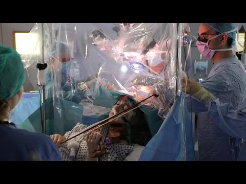 Ασθενής παίζει βιολί ενώ χειρουργείται στον εγκέφαλο