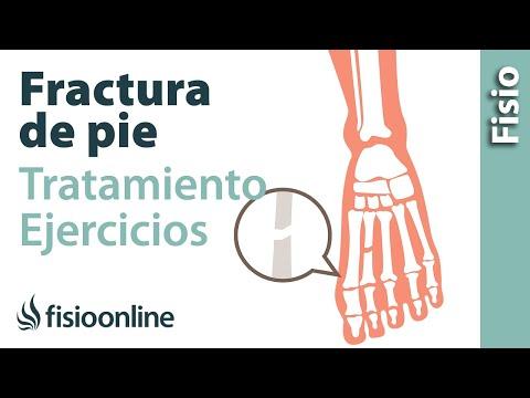 Complicazioni di artrite reumatoide delle articolazioni