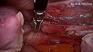 Basic Steps of Hysterectomy