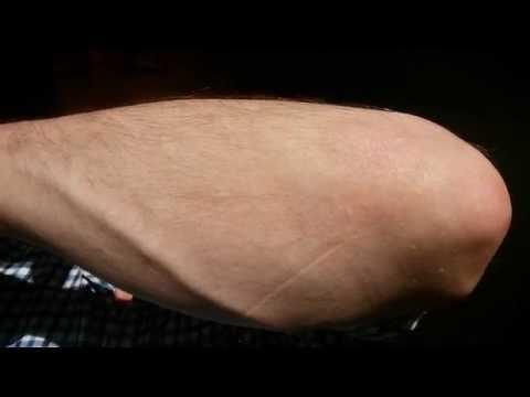 Das Bohnenkraut die Behandlung der Schuppenflechte