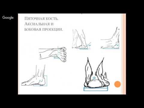"""Вебинар """"Рентген семиотика повреждений голеностопного сустава и стопы"""""""