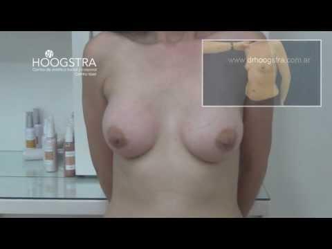 El precio de la operación en rossii por el aumento del pecho