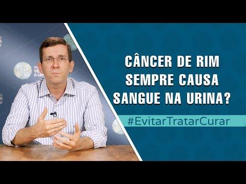 Cancer cervical screening