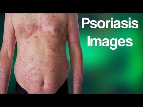 Terapia a eczema