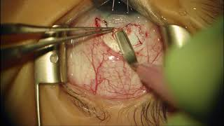 Surgery: Trabeculotomy for Congenital Glaucoma: Dr. Daniel Neely
