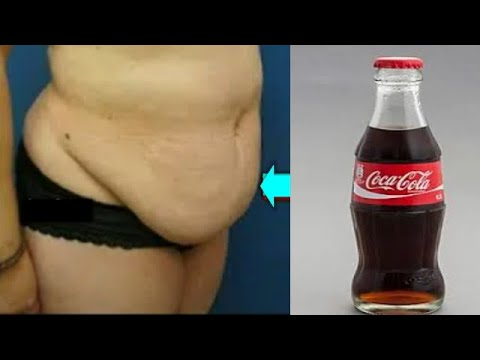 NO DIETING REMOVE BELLY FAT PERMANENTLY IN JUST 2 DAYS LOSE WAIST FAT SUPER FAT (COCA-COLA)