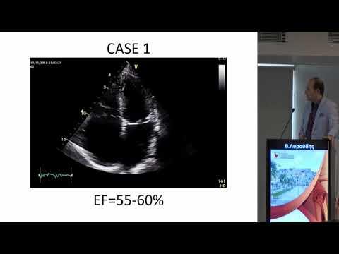 Β. Λυρούδης - Ασθενής με καρδιακή ανεπάρκεια και διατηρημένο κλάσμα εξώθησης