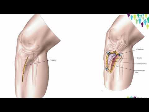 Dureri articulare și probleme intestinale