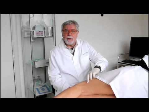La prova di Schwartz a varicosity