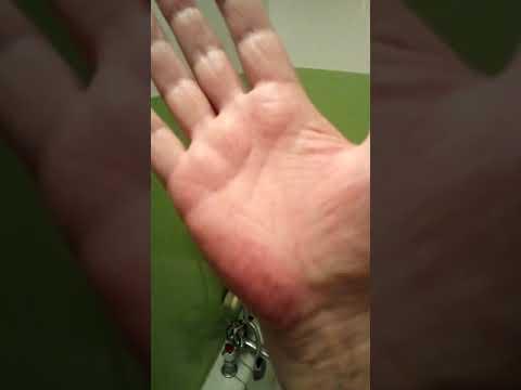 Bolący guz na palcu