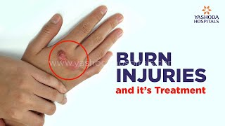 Different Types of Burn Injuries and Treatment | Plastic Surgeon in Hyderabad | Yashoda Hospitals