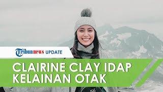 Cerita Clairine Clay Idap Kelainan Otak, hanya Istirahat untuk Mengurangi Sakit