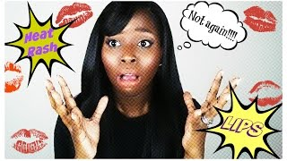 Heat Rash Lips!!! How to get rid of it! -natural heat rash remedies
