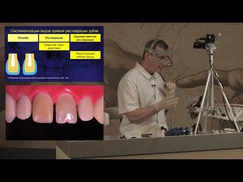 Реконструкция зубных рядов: устранение диастемы и трем