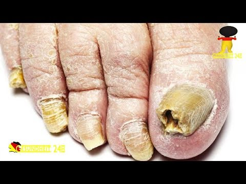 Die Behandlung gribka der Nägel osonoterapijej