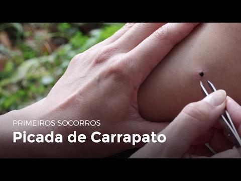 Dermatite de atopic em adultos de manifestação