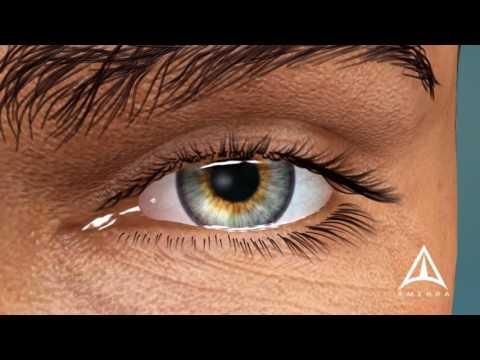 Comme traitent les oedèmes sous les yeux