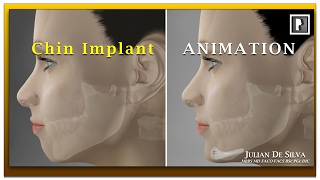 Chin Implant Animation Video - How is a chin implant inserted?