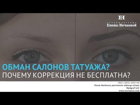 Операция на зрение минус 1