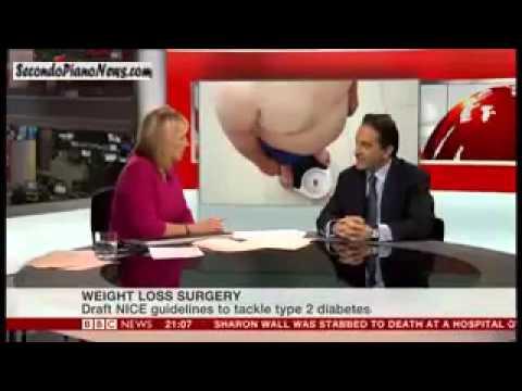 Farmaci per ridurre lo zucchero nel diabete