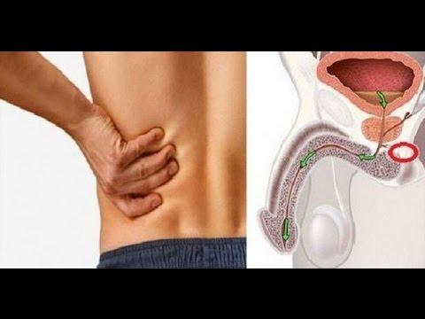 Parámetros de la norma de próstata