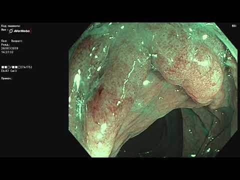 Ранний рак толстой кишки, хромоскопия