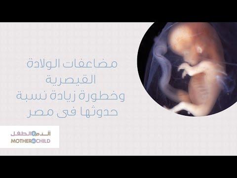 مضاعفات الولادة القصرية وخطورة زيادة نسبة حدوثها فى مصر