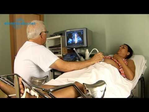 Ecografia la para obstetrica doppler que sirve