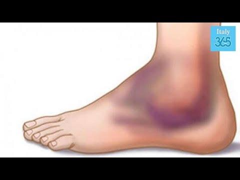 Infiammazione delle articolazioni della spalla